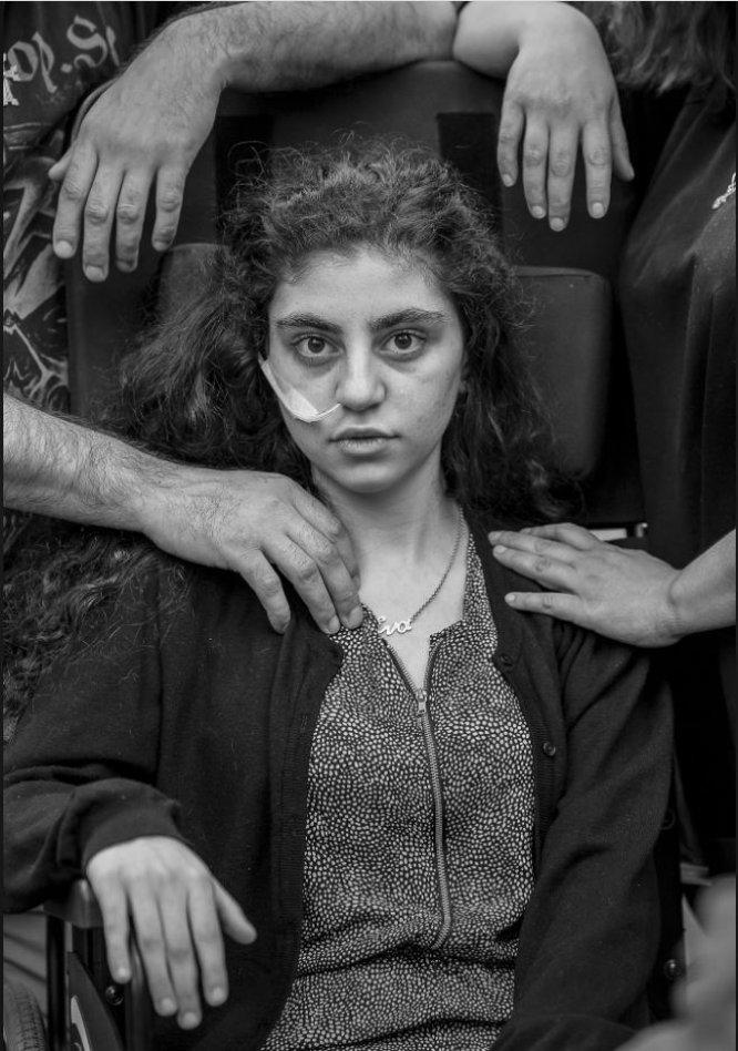 Una niña armenia de 15 años que despertó del estado catatónico provocado por el Síndrome de Resignación