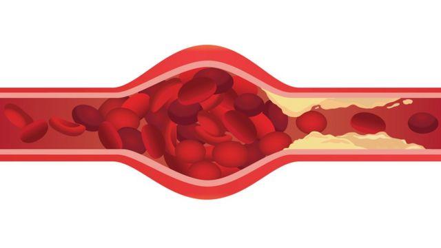 coagulo-de-sangre