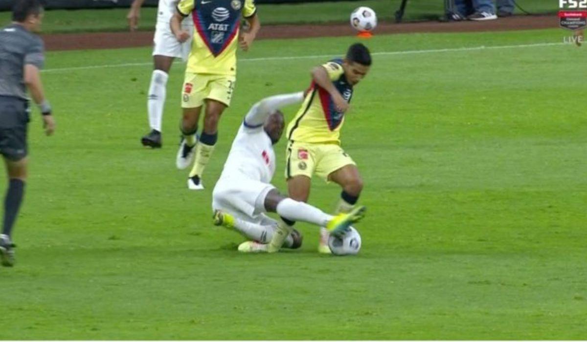 Jugador del América sufre aparatosa lesión || Video