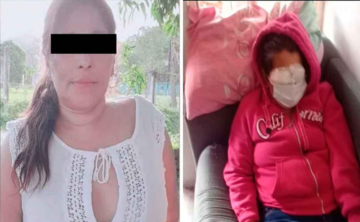 Mujer ataca con ácido a la novia de su ex marido en Veracruz.