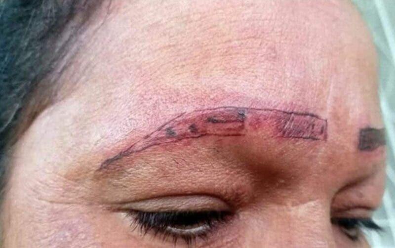 Mujer se queda sin cejas y en mal estado.