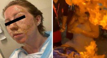 mujer sufre fuertes quemaduras derivado de un accidente que sucedio en un bar de cancun, mexico ya que una botella se derramo y emitio fuego directo al rostro de la mujer