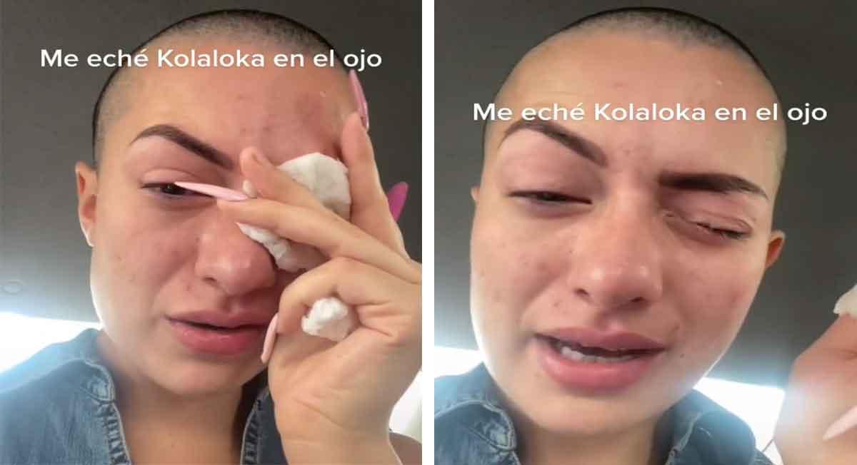 influencer es hospitalizada pro echarse kola loka al ojo